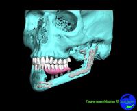 Modélisation 3D et reconstruction maxillofaciale